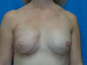 Breast Reconstruction 13