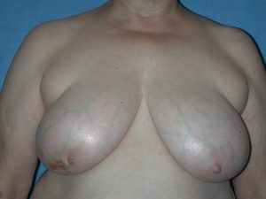Breast Reconstruction 14