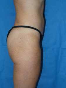 Buttock Shaping 3