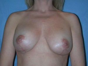 Breast Implants with Lift Patient 2
