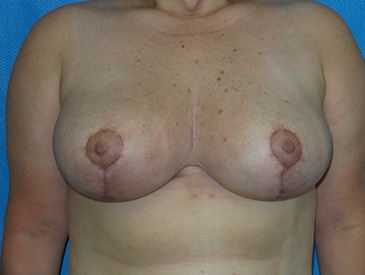 Breast Reduction – Patient 2