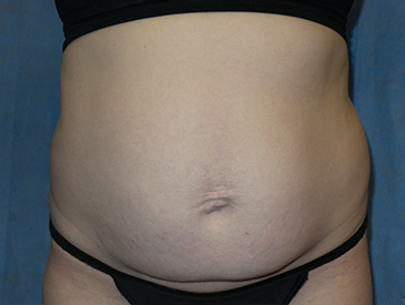 Non-Invasive Body Contouring – Patient 9