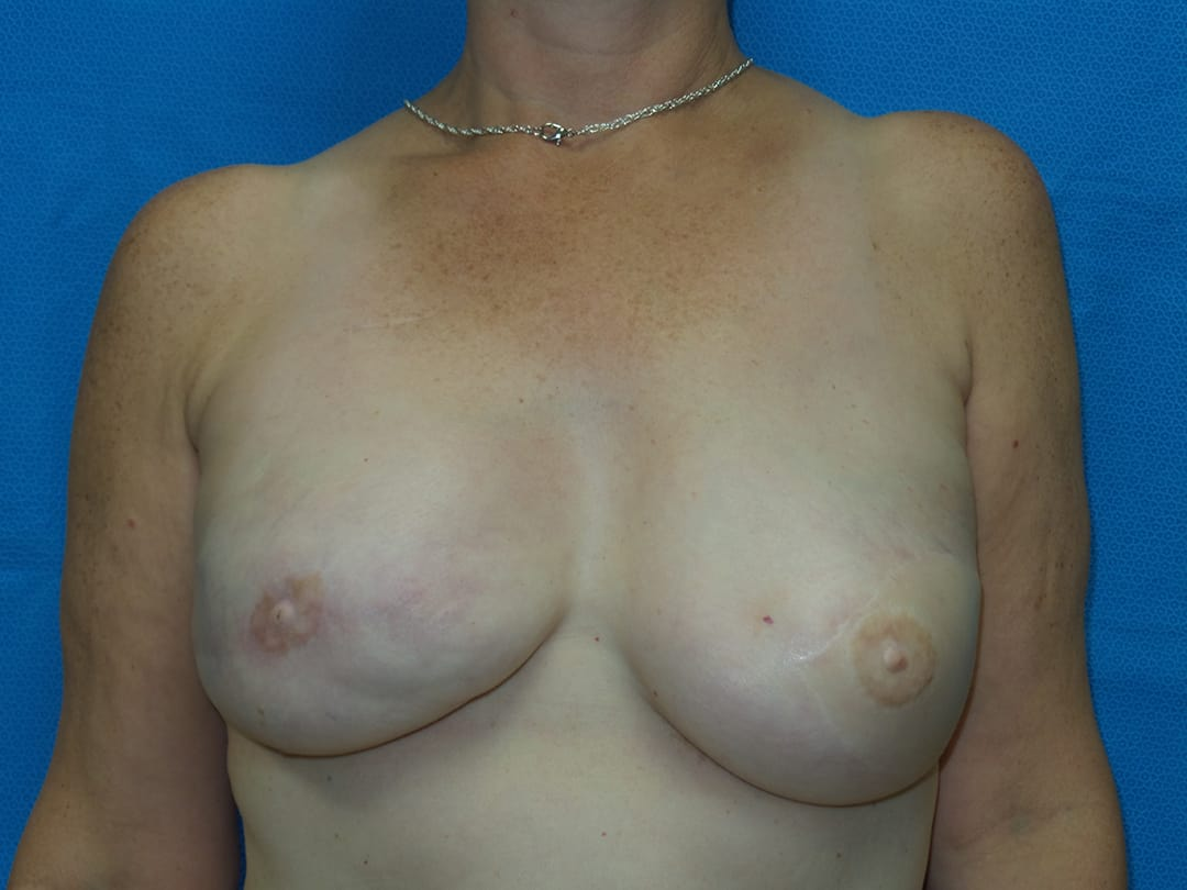 Breast Reconstruction 19