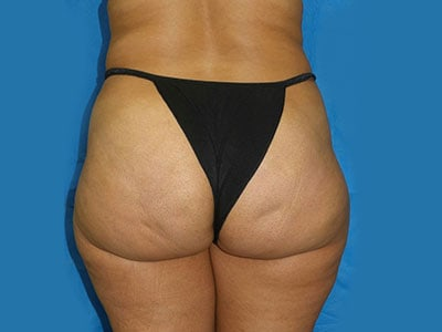 VASER Liposuction Patient 11